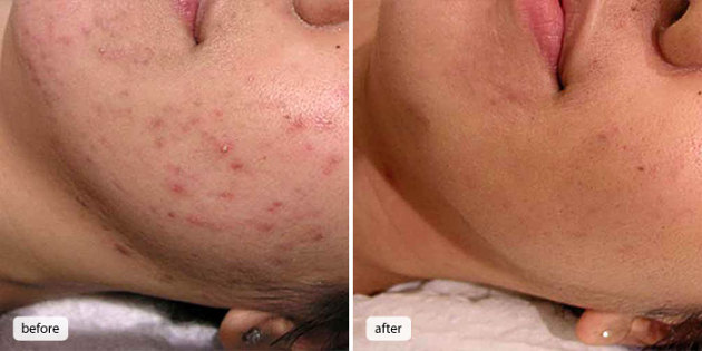 Before after acne photo