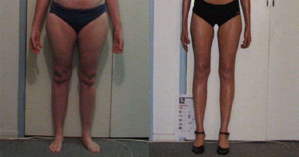 To Get An Inner Thigh Gap Lose Inner Thigh Fat Fast By